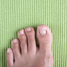 don u0027t just live with stubborn nail problems foot doctor in