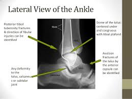 Subtalar Joint Fracture Ankle Joint Radiography
