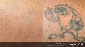 tattoo removal utah cost laser tattoo removal utah cost tattoo collection