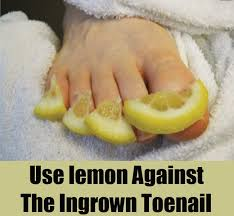 top methods to cure ingrown toenail home remedies for ingrown