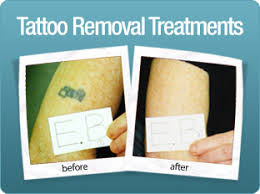 laser tattoo removal sheffield tattoo removal treatment doncaster