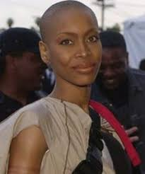 balding black women natural hair syyle i have two sisters and one in three women will be diagnosed