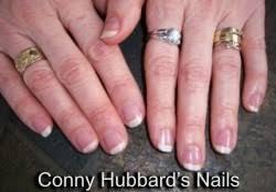 flexinail fingernail care what causes vertical fingernail ridges