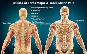 Posterior Shoulder Pain Bench Press Teres Major And Teres Minor Pain Causes Symptoms Treatment Exercises