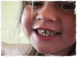 Little Girl Meme Teeth - great fun etc wordless wednesday gap toothed glory