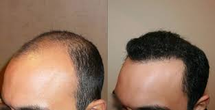 dhi hair transplant reviews hair transplant in surat best technique for hair transplant dhi