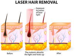 laser hair removal des plaines il renu medspa