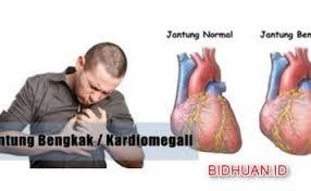 Salep Dermakel 5 nama obat keloid salep paling uh di apotik berbagi