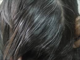 women with grey pubic hair premature graying of hair pandhi d khanna d indian j dermatol