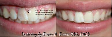How To Whiten Kids Teeth I Have A Brown Front Tooth Is It Dead How Do I Fix It Bauer