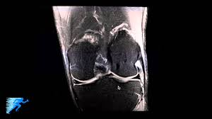 Anatomy Of Knee Injuries How To Read Knee Mri Of Normal Knee Anatomy Of The Knee