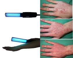 light therapy for eczema best sun l for psoriasis 1 derma light therapy for psoriasis