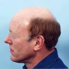 horseshoe haircut had the worst dream last night