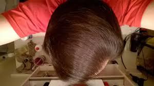 Azelaic Acid Hair Loss Hair Regrowth Slideshow 2015 Youtube