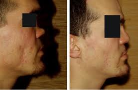 classification and treatment of the saddle nose deformity saddle nose classification and therapeutic management sciencedirect