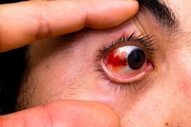 Sudden Blind Spot In Both Eyes Red Eyes List Of Common Causes