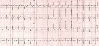 strain pattern ecg meaning right ventricular strain life in the fast lane ecg library