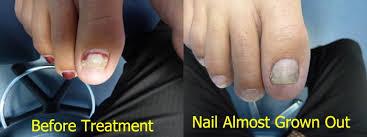 laser nail fungus treatment nail fungus information
