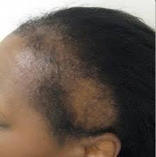 hair weave styles 2013 no edges save your edges rehairducation