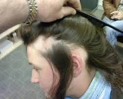 Women Hair Loss Treatment More Treatment Options For Alopecia Areata The Hair Centre Hair