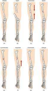 Appendicular Skeleton Worksheet Fractures Bone Repair Anatomy And Physiology
