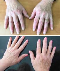 psoriasis treatment psoriasis treatment update woman discovers miracle cure in this