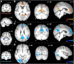 effects of resveratrol on memory performance hippocampal