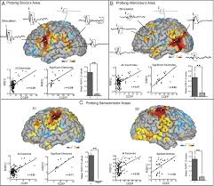 Human Brain Mapping Intrinsic Functional Architecture Predicts Electrically Evoked