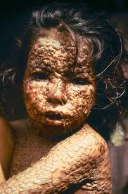 What Causes Blindness In Humans Smallpox Wikipedia