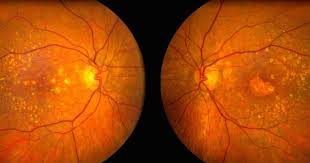 Gene Therapy For Blindness An Experimental Gene Therapy Uses Viruses To Stop Age Related