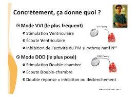 pacemaker chambre dysfonction d un pm urgences 2014