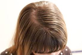 sollutions to dry limp hair hair care tips for fine thin oily hair livestrong com
