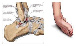 Posterior Inferior Tibiofibular Ligament How To Manage An Ankle Sprain Total Physiocare