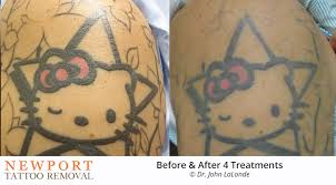 before after tattoo removal results newport tattoo removal