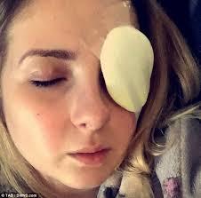 halloween reveller rips off her cornea when contact lenses became