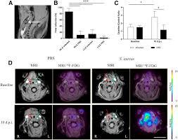 a novel mouse model of staphylococcus aureus vascular graft