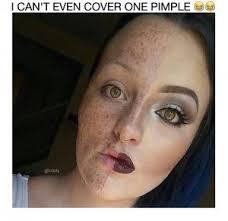 Pimple Meme - pimple jokes kappit