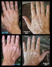 uvb light therapy for vitiligo is uvb the best treatment for vitiligo vitiligo cover