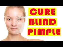 How To Get Rid Of Blind Pimples Home Remedies To Cure A Blind Pimple How To Remove Blind Pimple