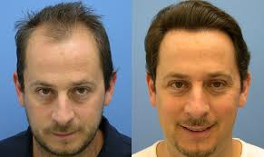 hair salons that perm men s hair perm hair salon for fue vs fut hair transplant surgery mens answer
