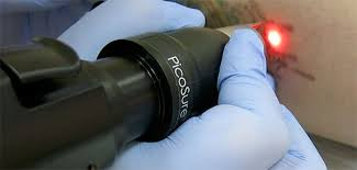picosure tattoo removal laser is now here in allentown pa