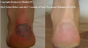 heel tattoo before and after laser removal tattoo love