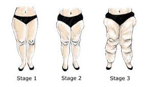 Can You Wear Compression Socks To Bed Compression Stockings As A Treatment Option For Lipedema And