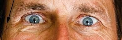 light streaks after cataract surgery post cataract surgery light streaks laser posterior posterior