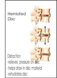 inversion table for herniated disc in neck chiropractor in wellington keystone chiropractic 5 things to