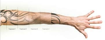 laser removal u2013 dublin ink tattoo