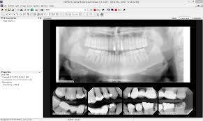 mipacs dental enterprise viewer medicor imaging