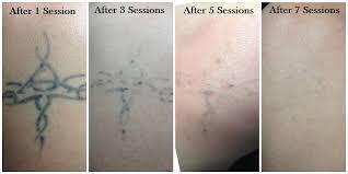 tattoo removal does it work skin renew ks