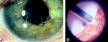 canula fiore ct characteristics of intraocular perfluoro n octane american