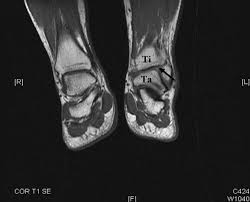 Ankle Ligament Tear Mri Chronic Isolated Distal Tibiofibular Syndesmotic Disruption